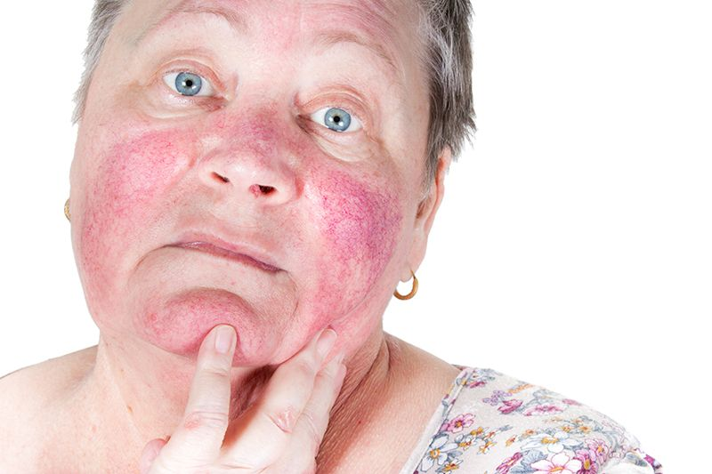 Rosacea treatment in Southfield Michigan